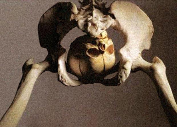 060921_skeleton